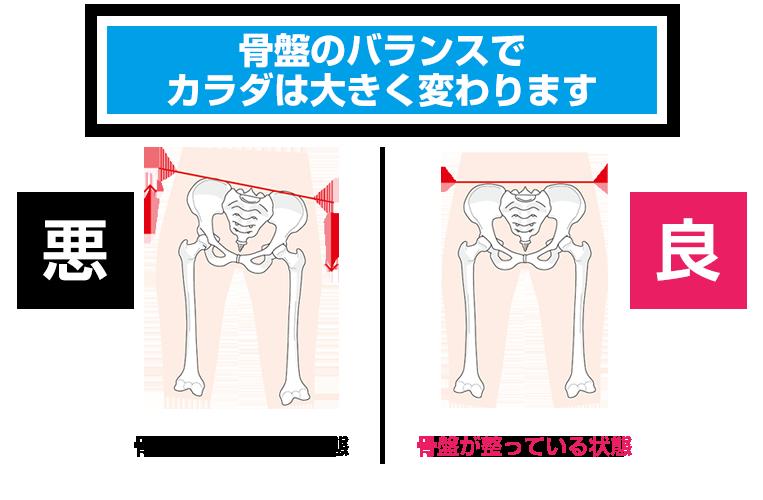 骨盤のバランス画像